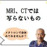 MRI、CTでは写らないもの