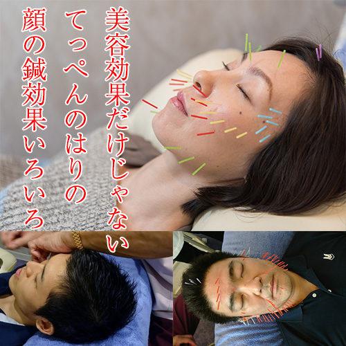リピート多!大人気てっぺんのはりの美容鍼の効果!