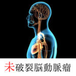 未破裂脳動脈瘤について