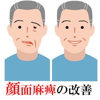 顔面麻痺の改善